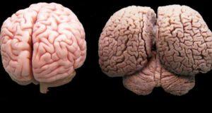 مقارنة بين دماغ الإنسان والدولفين